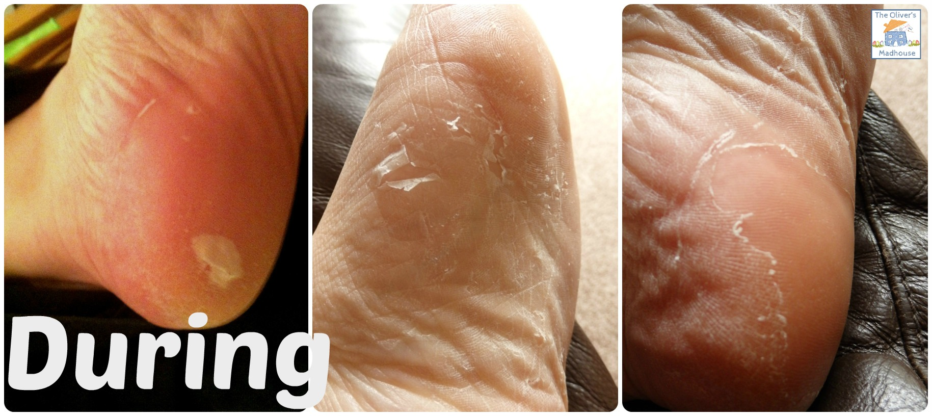 Photos Of Dry Cracked Feet During Footner Exfoliating Sock Treatment