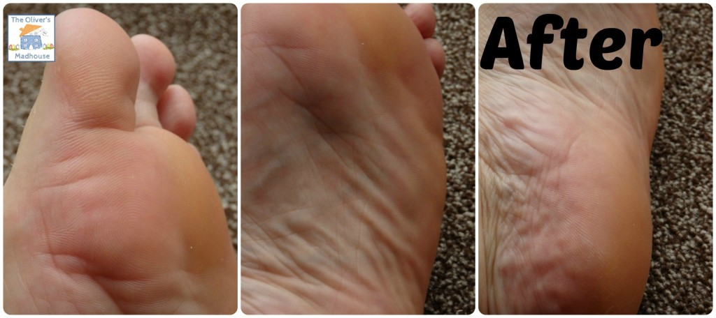 After using footner exfoliating sock treatment