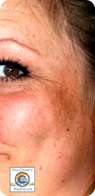 My Patchy Face - Melasma The Oliver\\\'s Madhouse