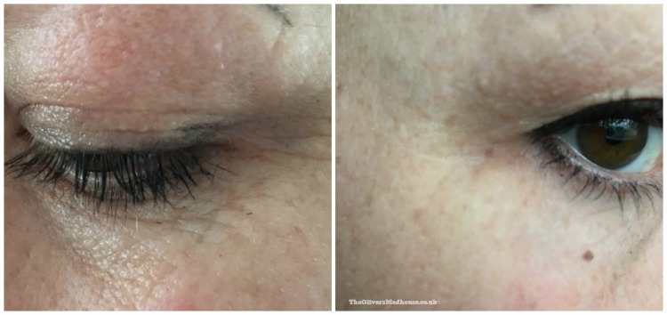 Tria Beauty Age-Defying Laser - A Review The Oliver\\\'s Madhouse