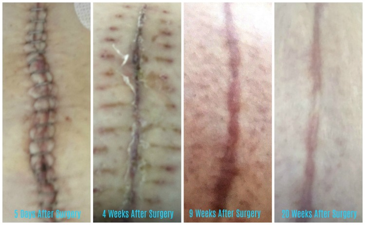 A Review: Science of Skin - Solution For Scars The Oliver\\\'s Madhouse