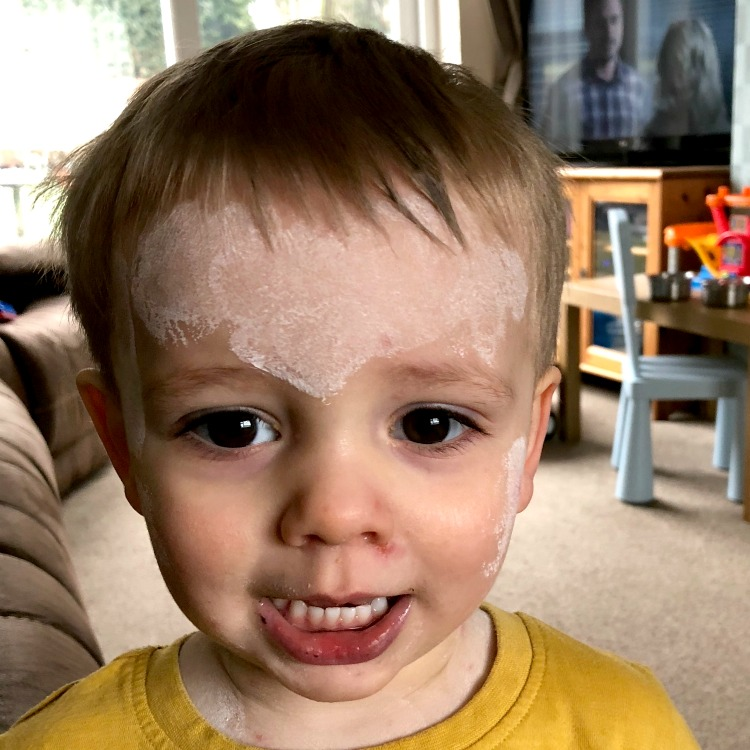 The Arrival Of Chicken Pox The Oliver\\\'s Madhouse